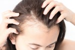 Things To Keep In Mind For Easy Scalp Care